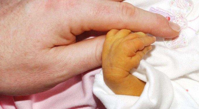 Bebeklerde Sarılık Belirtileri ve Tedavi Yöntemleri
