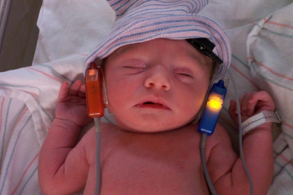 Yeni Doğan Bebeğe Yapılması Gereken Testler